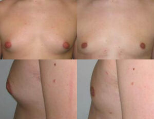 gynecomastia men by Dr. Chang Soo KimBellava MedAesthetics & Plastic Surgery Center in Bedford Hills, NY