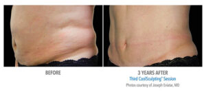 CoolSculpting midsection flanks before and after Bellava MedAesthetics & Plastic Surgery Center in Bedford Hills, NY