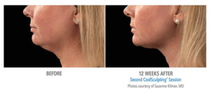 CoolSculpting neck before and after Bellava MedAesthetics & Plastic Surgery Center in Bedford Hills, NY