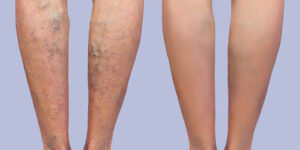 veins sclerotherapy radiofrequency ablation before and after Bellava MedAesthetics & Plastic Surgery Center in Bedford Hills, NYveins sclerotherapy radiofrequency ablation before and after Bellava MedAesthetics & Plastic Surgery Center in Bedford Hills, NY