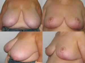 breast reduction by Dr. Chang Soo KimBellava MedAesthetics & Plastic Surgery Center in Bedford Hills, NY