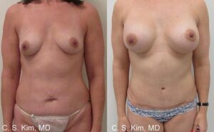Mommy Makeover breast augmentation, tummy tuck by Dr. Chang Soo Kim Bellava MedAesthetics & Plastic Surgery Center in Bedford Hills, NY