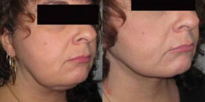 necklift by Dr. Chang Soo Kim before and after Bellava MedAesthetics & Plastic Surgery Center in Bedford Hills, NY