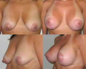 breast lift by Dr. Chang Soo KimBellava MedAesthetics & Plastic Surgery Center in Bedford Hills, NY