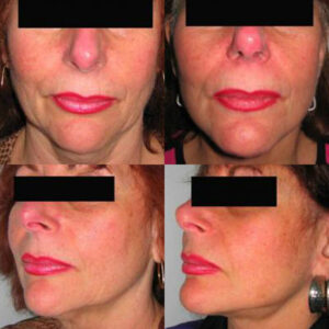 facelift by Dr. Chang Soo KimBellava MedAesthetics & Plastic Surgery Center in Bedford Hills, NY