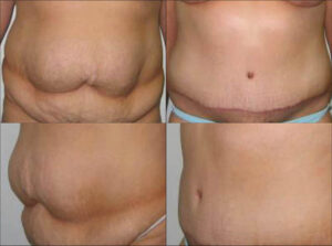 Tummy Tuck side and front view