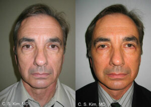 blepharoplasty eye lift by Dr. Chang Soo Kim before and after Bellava MedAesthetics & Plastic Surgery Center in Bedford Hills, NY