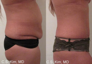 full tummy tuck by Dr. Chang Soo Kim before and after Bellava MedAesthetics & Plastic Surgery Center in Bedford Hills, NY
