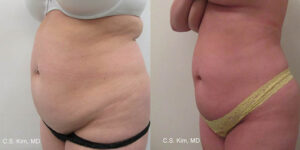 laser lipo by Dr. Chang Soo Kim before and after Bellava MedAesthetics & Plastic Surgery Center in Bedford Hills, NY