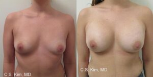 breast augmentation by Dr. Chang Soo KimBellava MedAesthetics & Plastic Surgery Center in Bedford Hills, NY