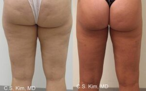 brazilian butt lift by Dr. Chang Soo Kim before and after Bellava MedAesthetics & Plastic Surgery Center in Bedford Hills, NY