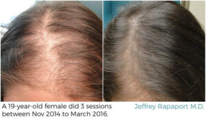 PRP treatment before and after Bellava MedAesthetics & Plastic Surgery Center in Bedford Hills, NY