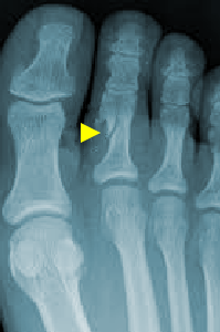 An X-ray detailing Fractured Toes