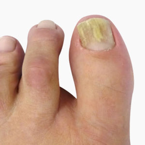 Fungal Infection Nails