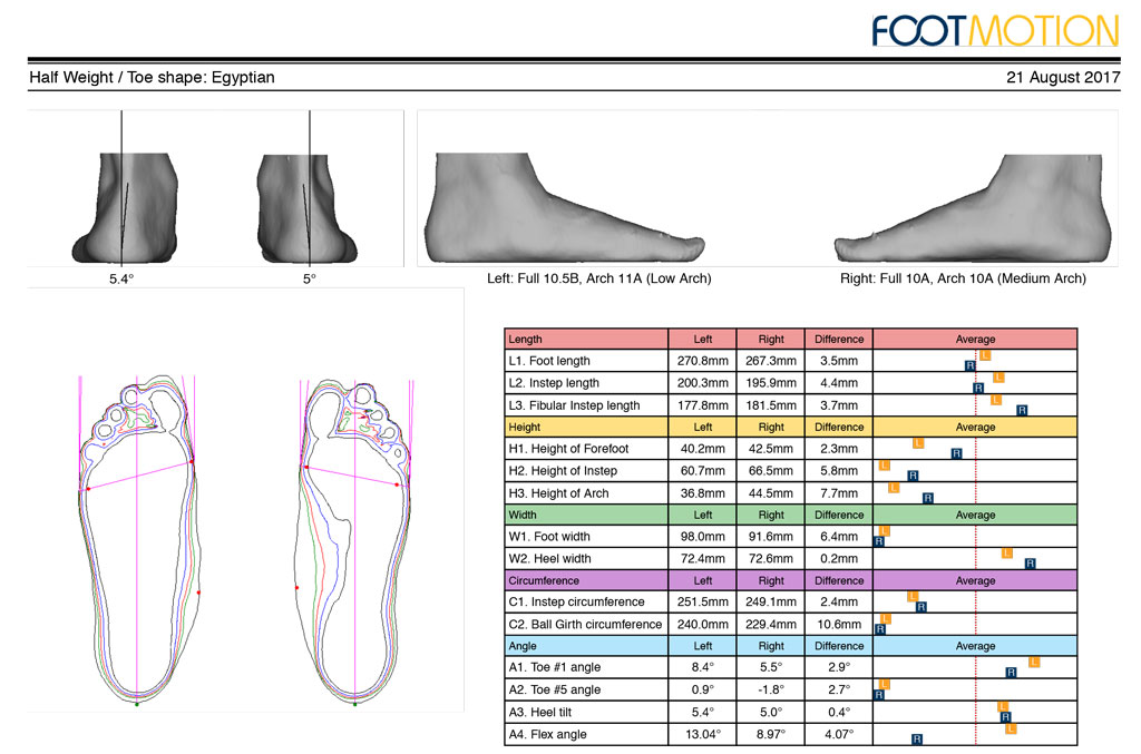 Diabetes Foot Protection - 3D Scan Report
