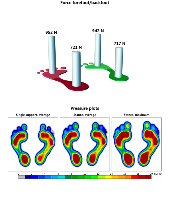 Diabetes Foot Protection - footprint mapping test