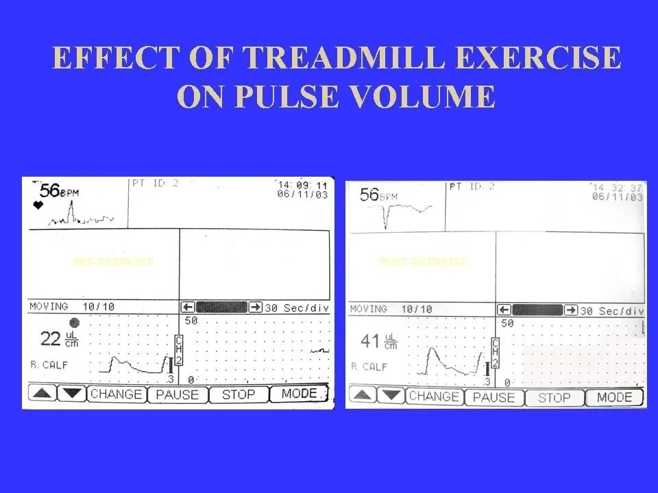 Effect of Treadmill