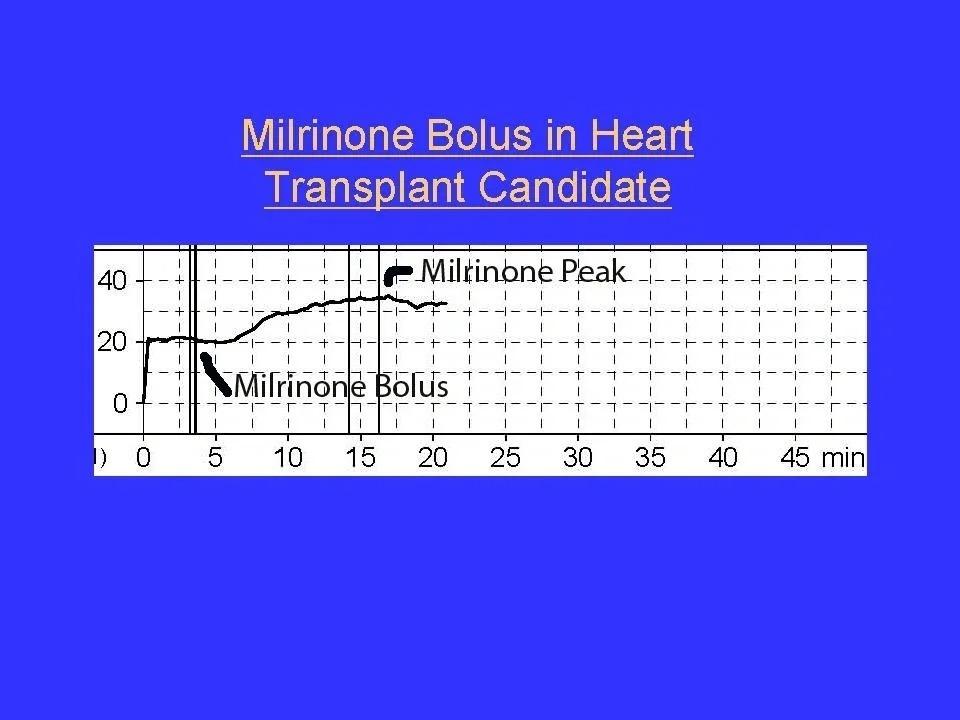 Milrinone Bolus in Heart