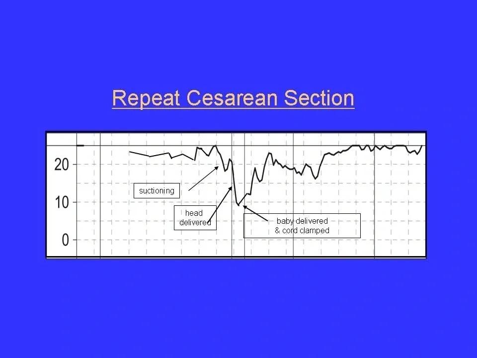 Repeat Cesarean Section