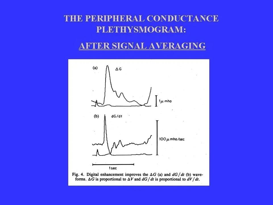 The Peripheral Conduntance Plethysmogram