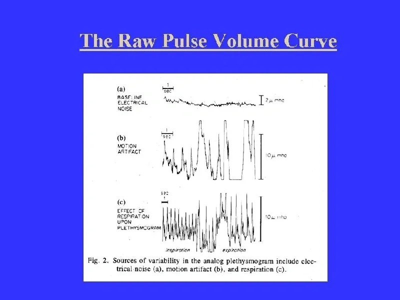 The Raw Pulse Volume Curve