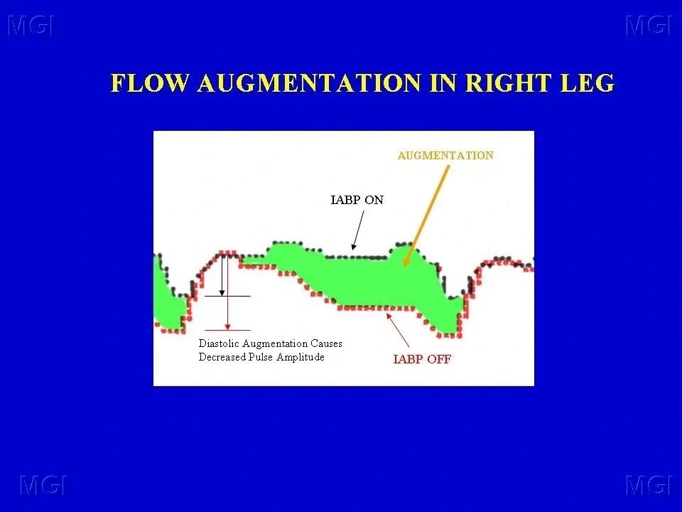flow augmentation
