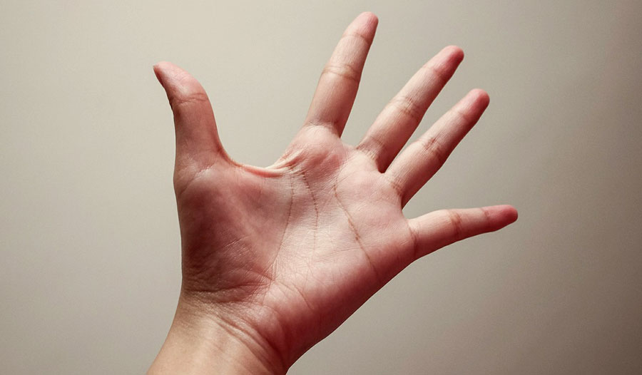 Carpal Tunnel Syndrome Exercises