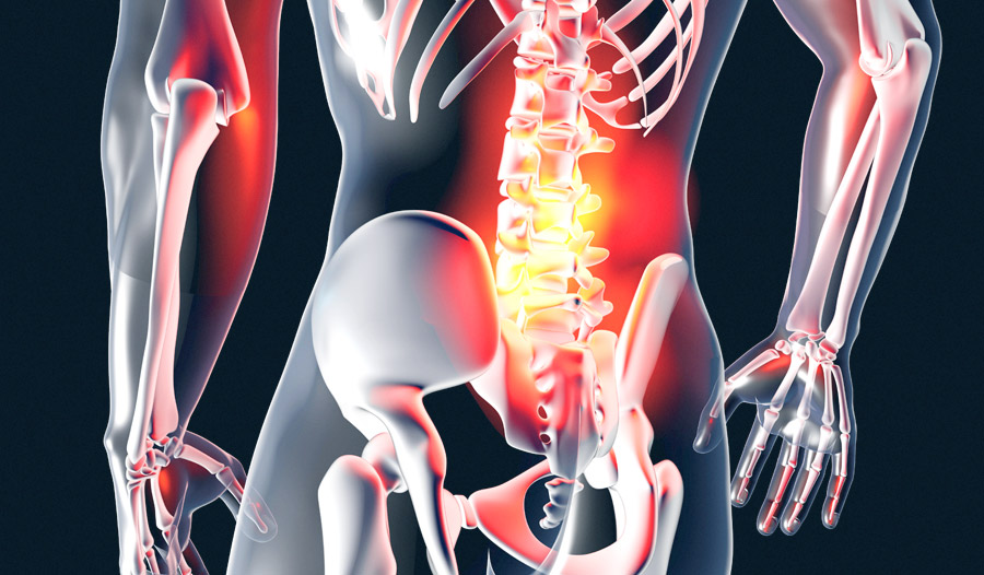 NJ Sciatica Treatment-Bergen/Passaic County: New Jersey