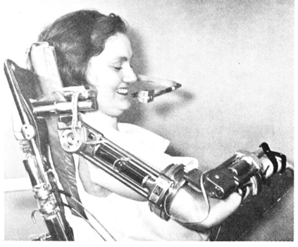 The Rancho Los Amigos Orthosis from 1977