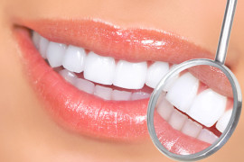 annorexia and bulimia effects on teeth