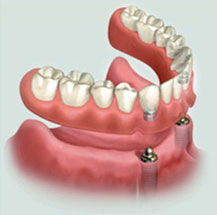 denture stabilization with two dental implants model