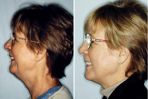 bioesthetic makeover jaw position and correct bite