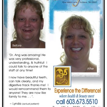 lyndas testimonial and before and after