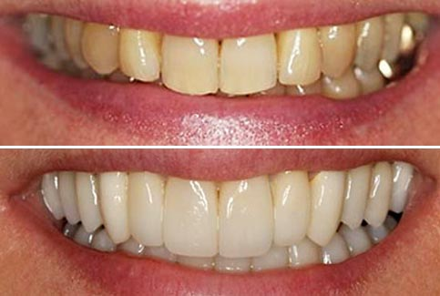 laura's smile after crowns and bite correction