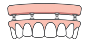 A full arch of implants being placed on an upper jaw