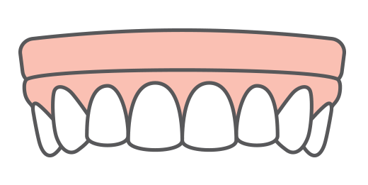 An illustration of a pair of dentures supported by implants