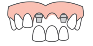A dental implant bridge being placed on a jaw