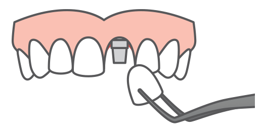 A single dental implant being placed into a jaw