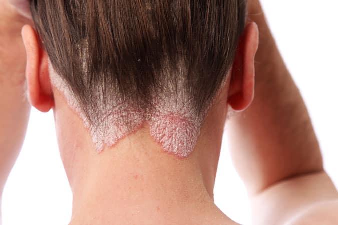 Psoriasis & Eczema Treatments