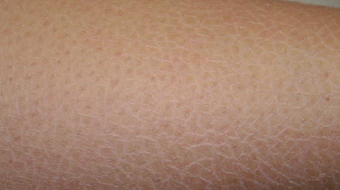 Dry Skin - Xerosis