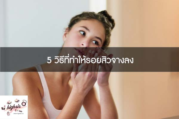 5 วิธีที่ทำให้รอยสิวจางลง #ของมันต้องมี