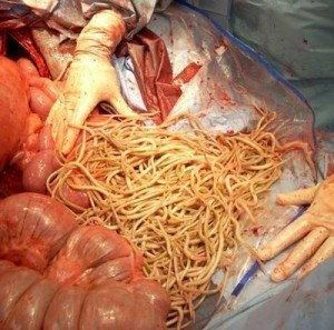 Ascarid impaction in a weanling at surgery