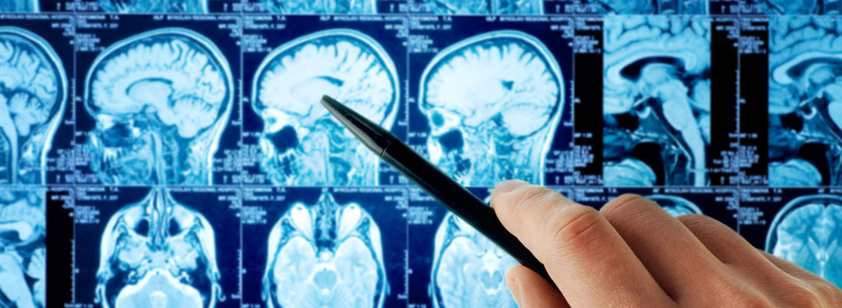 Neurology MRI