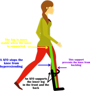 ankle foot orthosis diagram