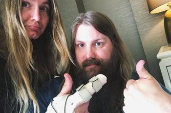 Chris Stapleton Broken Finger