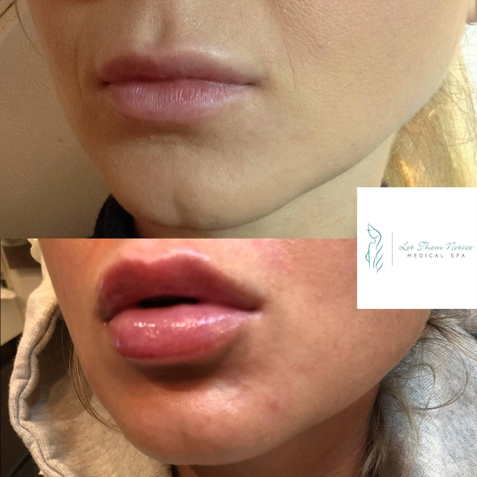 Botox Lips Toronto 1