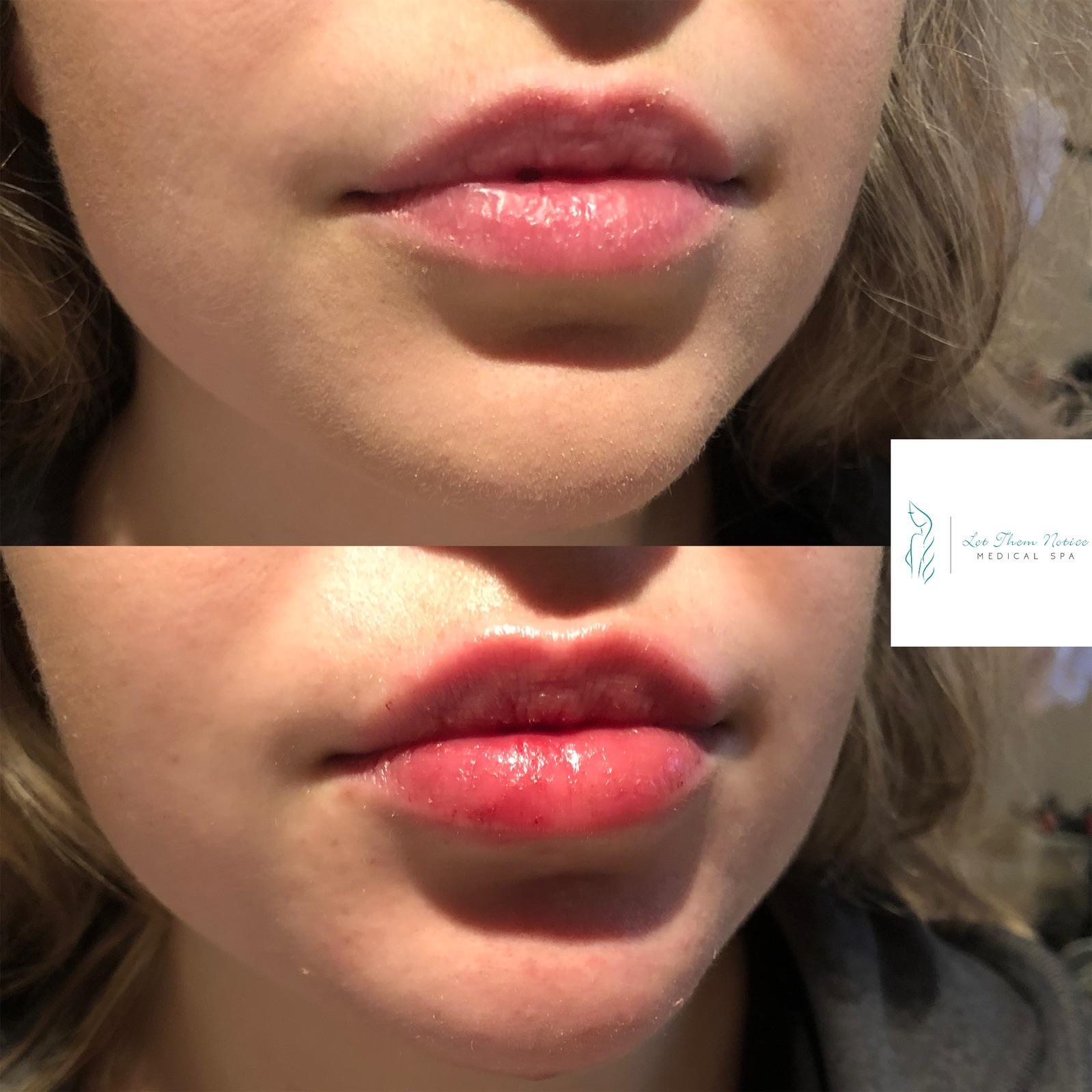 Botox Lips Toronto
