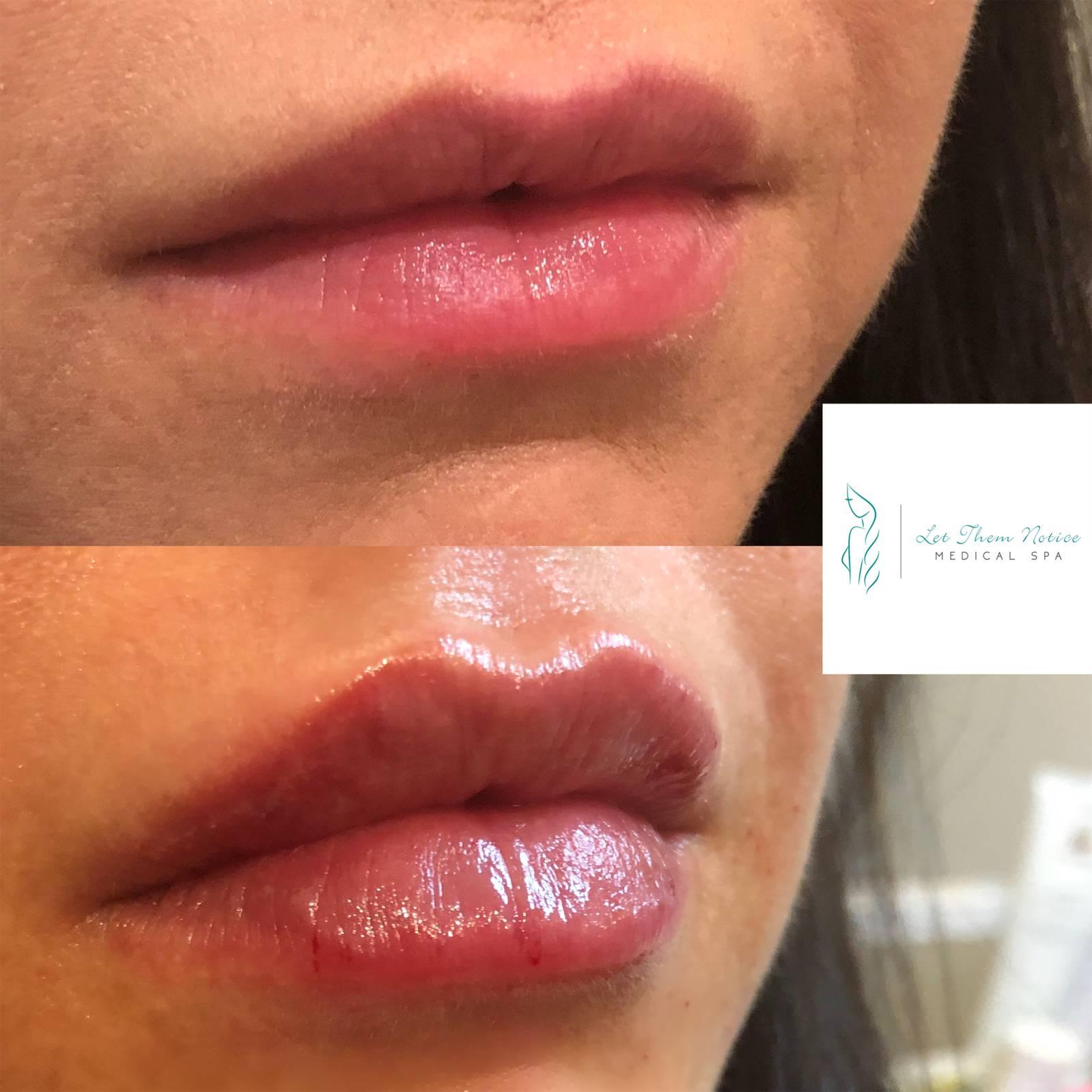 Botox Lips Toronto 4