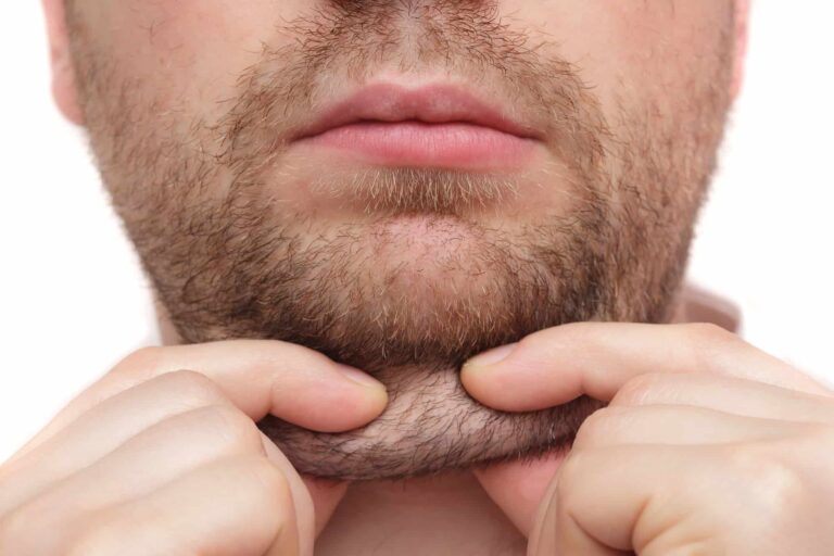 double chin, fat reduction, submental fat, fat injection , chin reduction