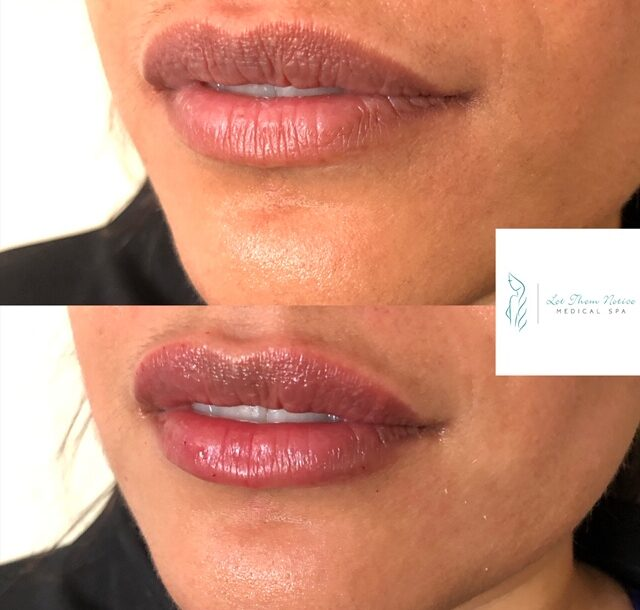 toronto lip injections lip dermal filler